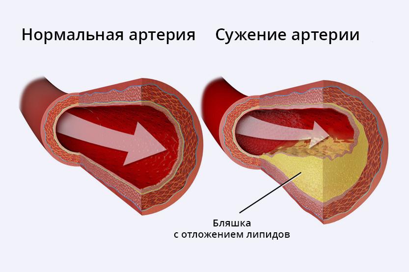 asinsvads_RU